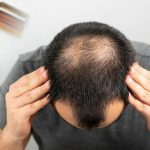 How to Growth Hair loss in Nepal